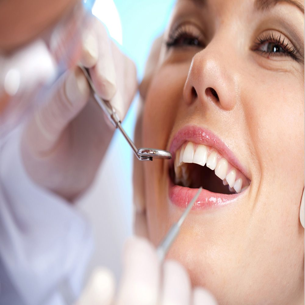 Carillas Porcelana, dentista asturies, clinica dental point aviles